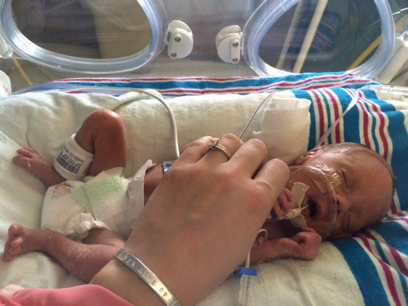 Gabriella-was-born-premature-at-28-weeks-gestation