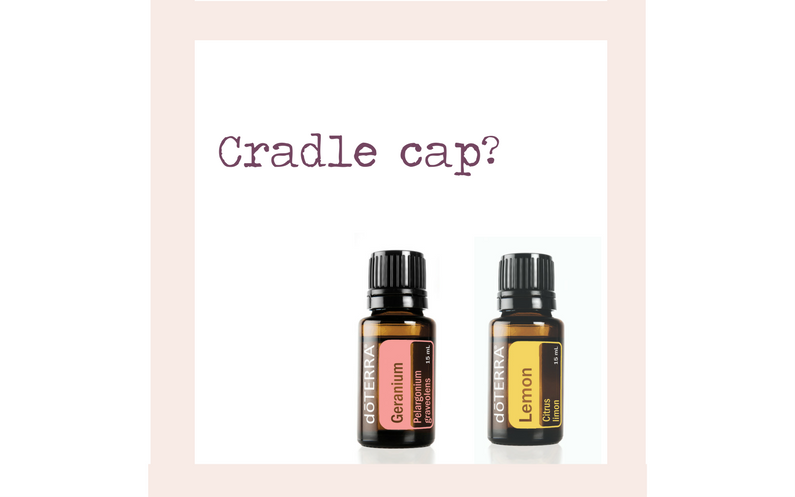 Cradle Cap? – Try Lemon and Geranium